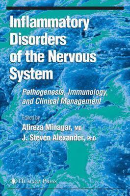 Sclerosi multipla: il ruolo delle vene nelle malattie neurodegenerative